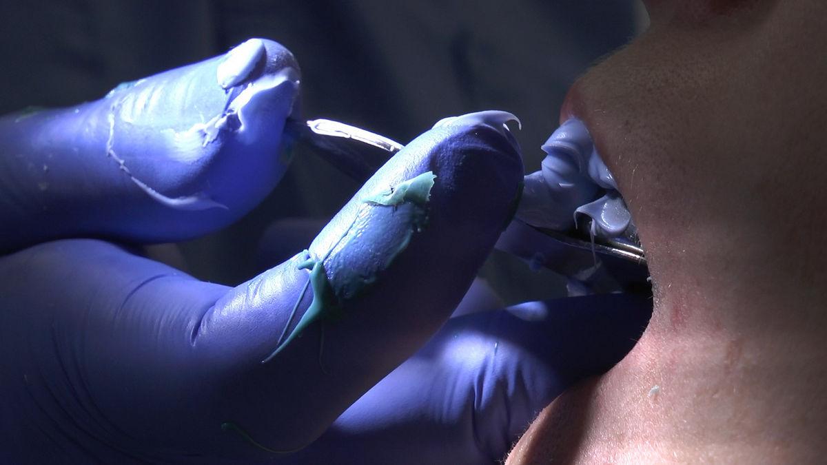 practiculum-implantologii-svb-s8-p2-026