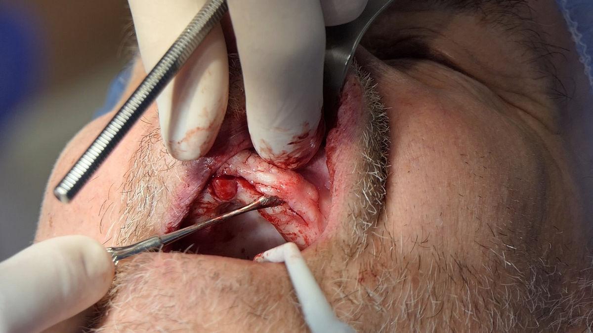 practiculum-implantologii-svb-s8-p1-021