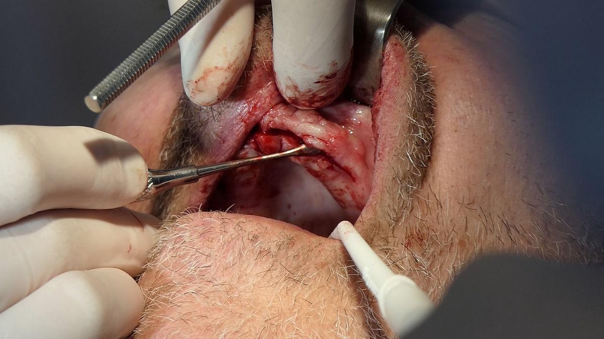 practiculum-implantologii-svb-s8-p1-022