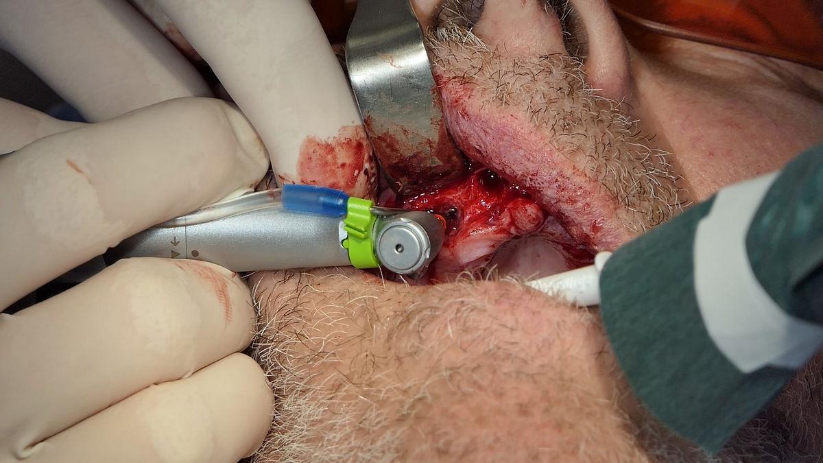 practiculum-implantologii-svb-s8-p1-025