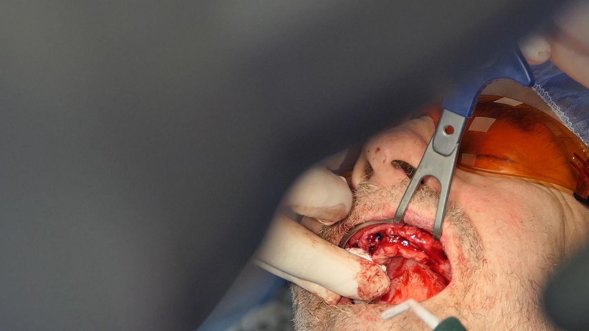 practiculum-implantologii-svb-s8-p1-059