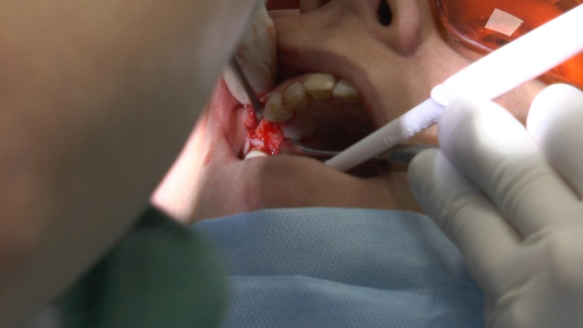 practiculum-implantologii-s6-e6-062