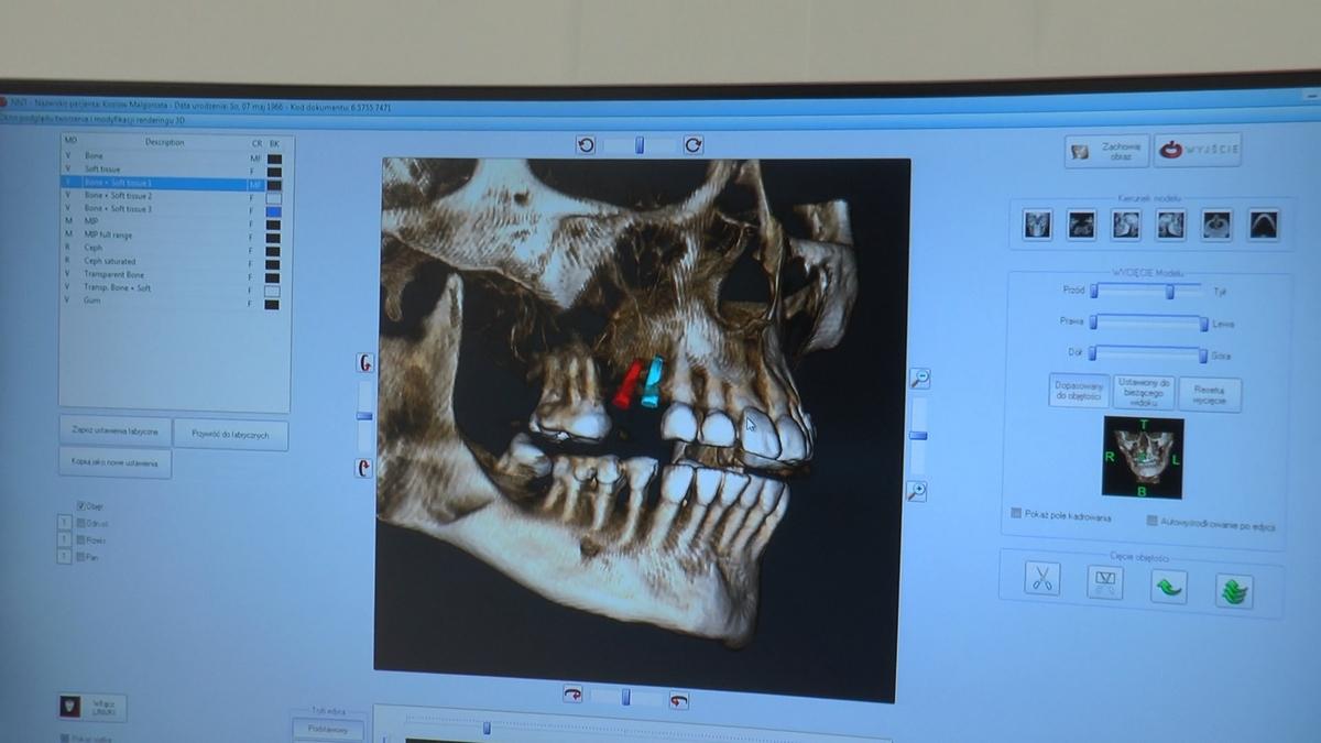 practiculum-implantologii-s6-e6-078