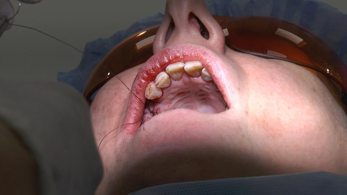 practiculum-implantologii-s6-e6-107
