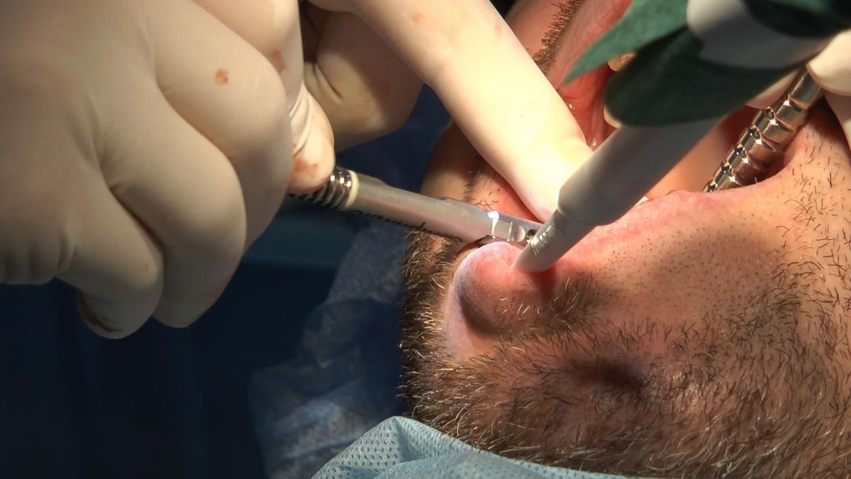 practiculum-implantologii-s6-e6-331
