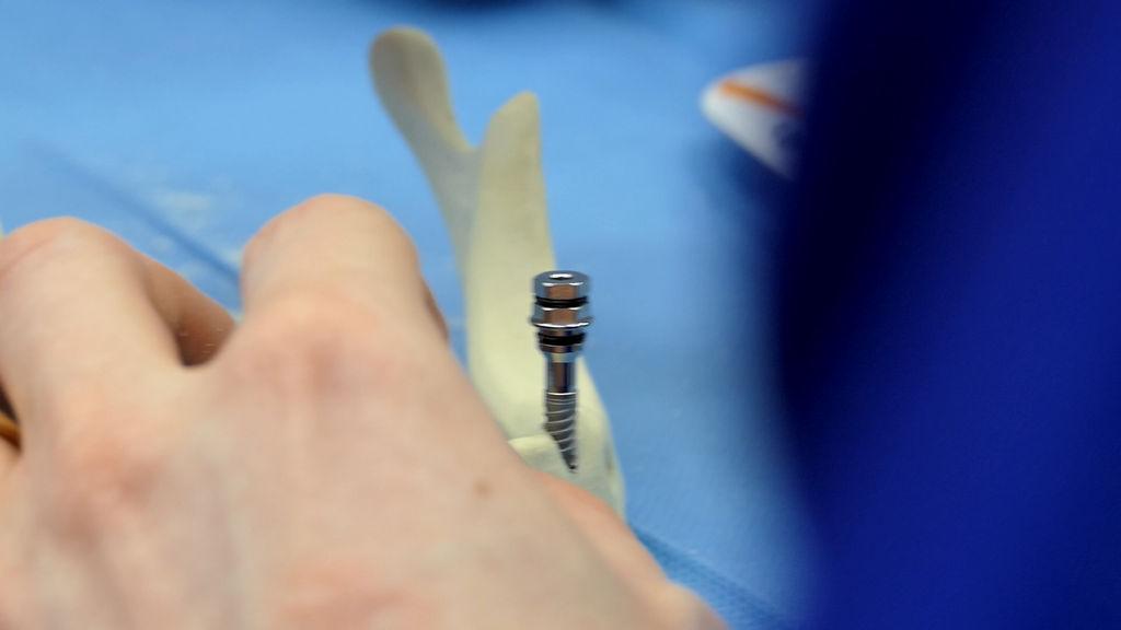 practiculum-implantologii-06-s1-009