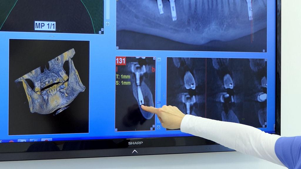 practiculum-implantologii-06-s1-033