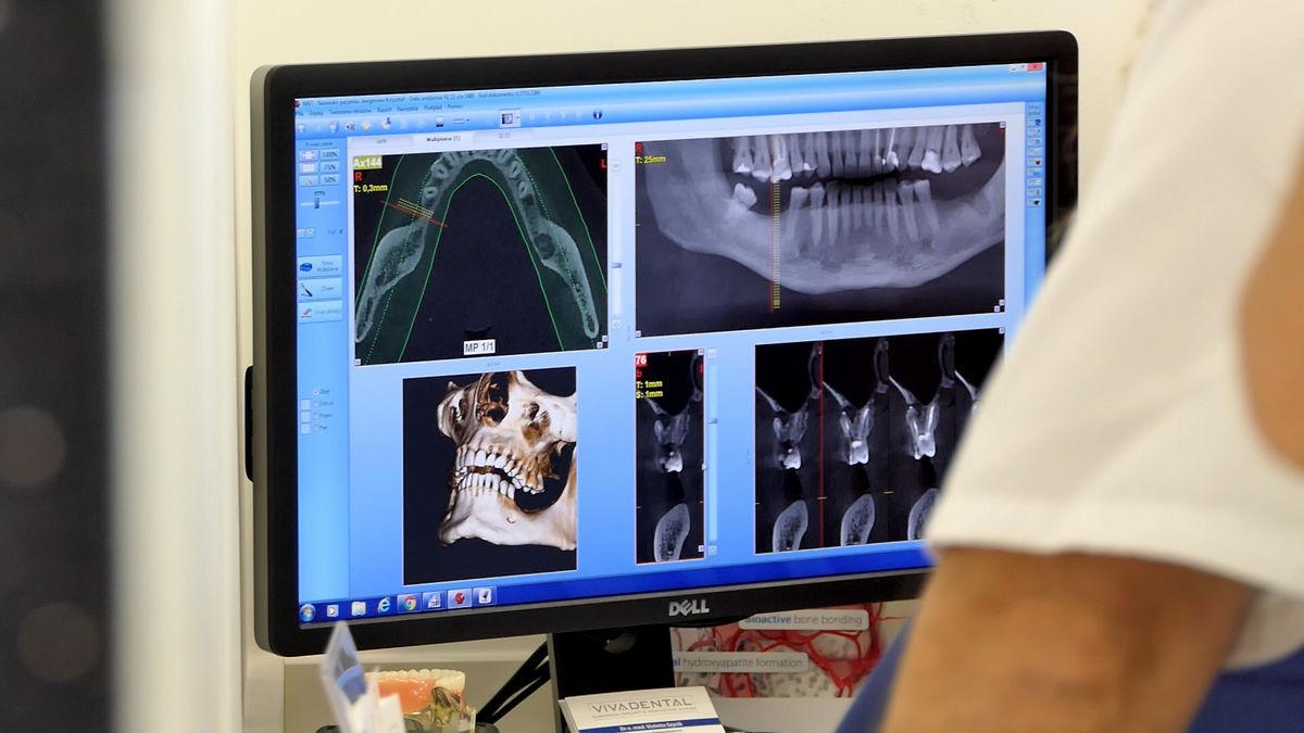 practiculum-implantologii-svi-s2-035