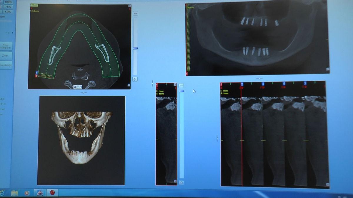 practiculum-implantologii-siv-s3-014