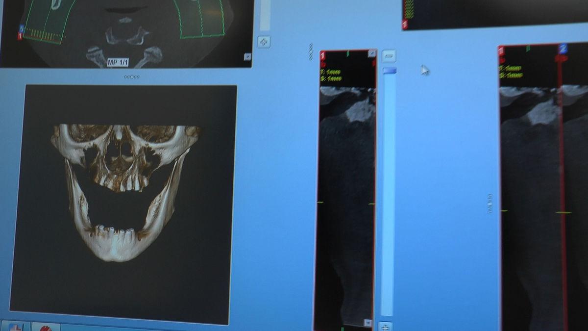 practiculum-implantologii-siv-s3-015
