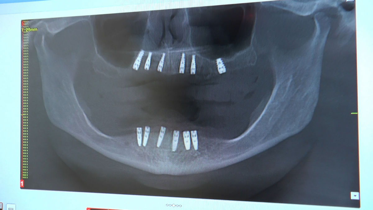 practiculum-implantologii-siv-s3-016
