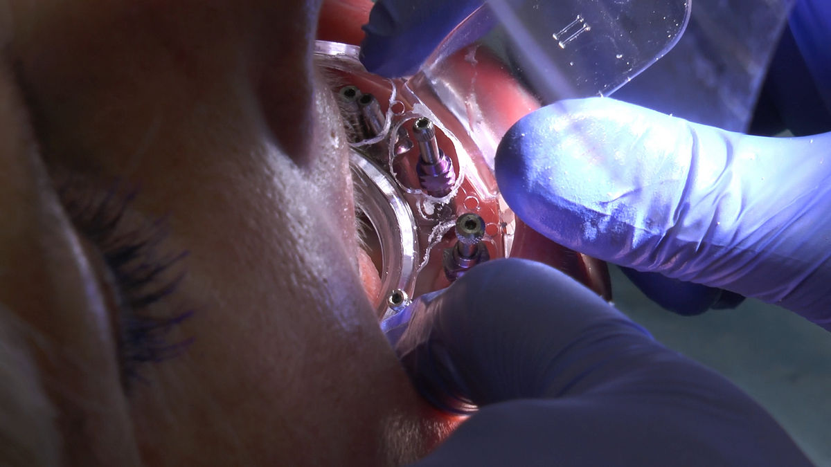 practiculum-implantologii-siv-s3-149