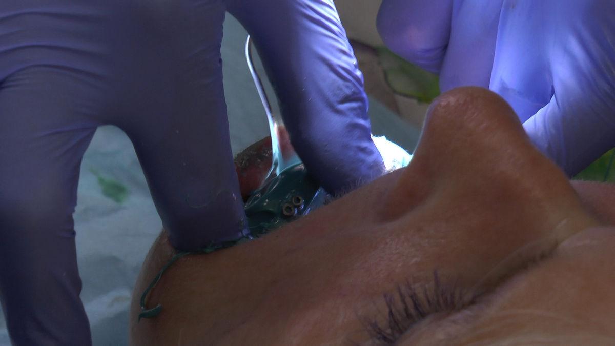 practiculum-implantologii-siv-s3-155