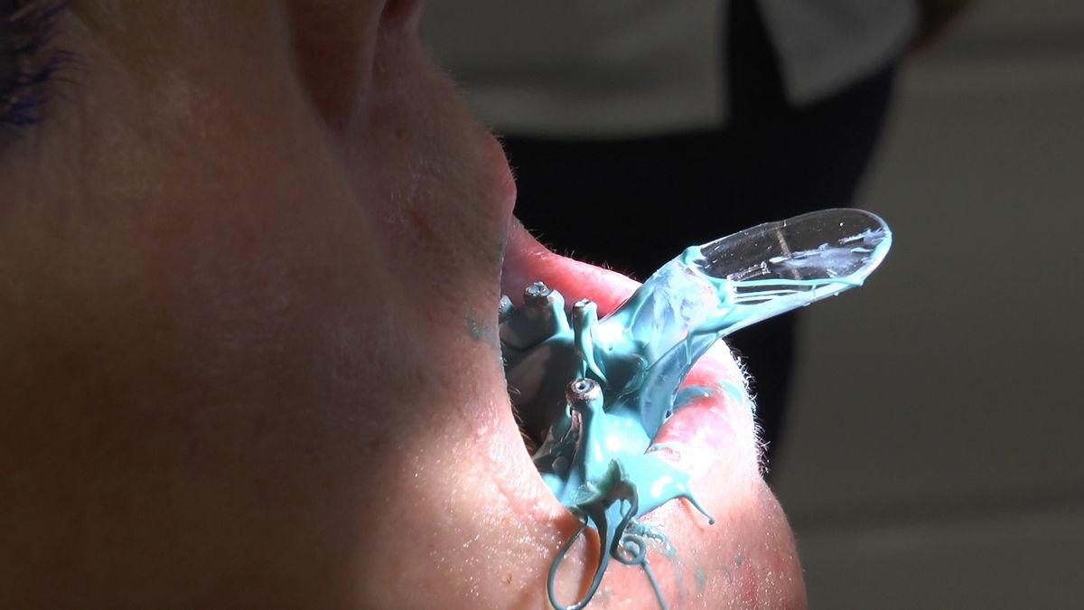 practiculum-implantologii-siv-s3-161