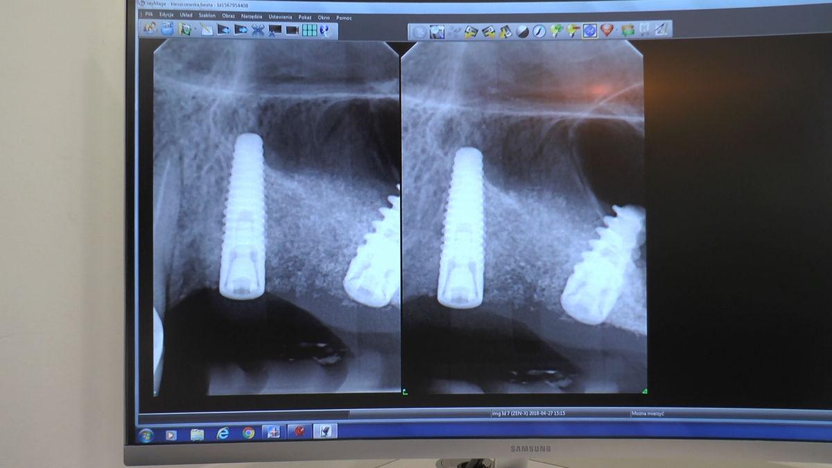 practiculum-implantologii-siv-s3-182