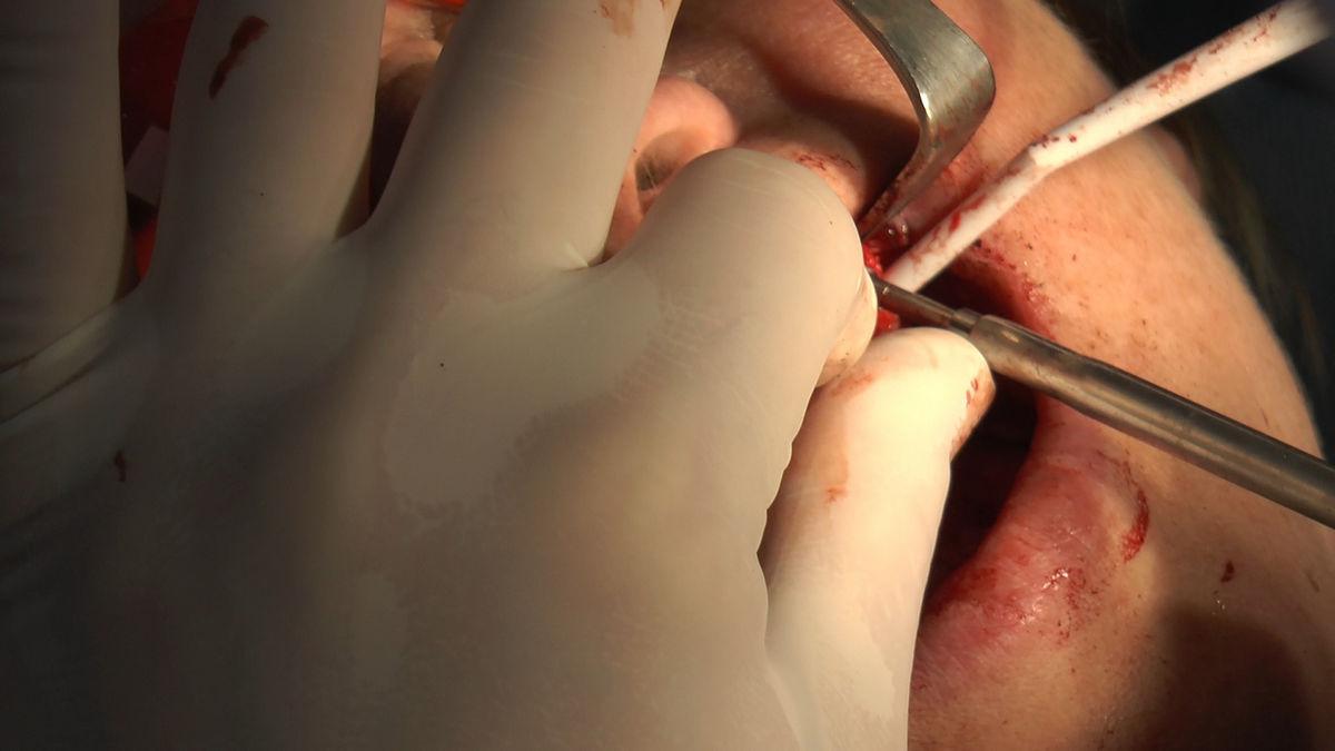 practiculum-implantologii-siv-s3-007
