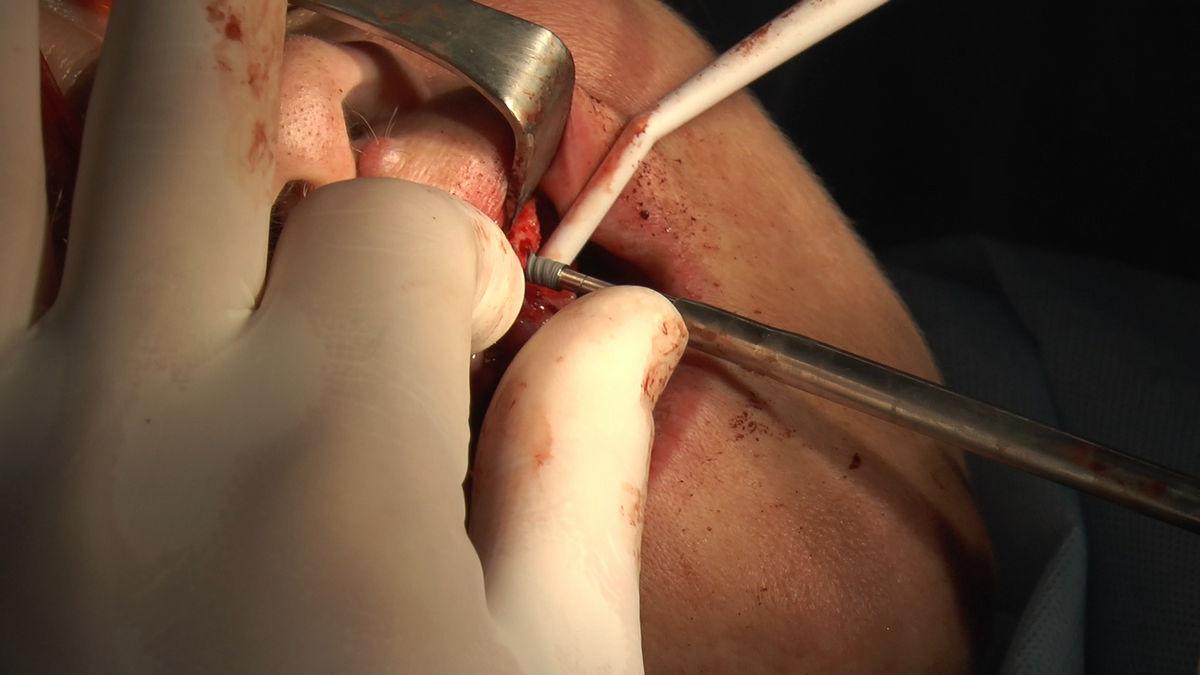 practiculum-implantologii-siv-s3-029