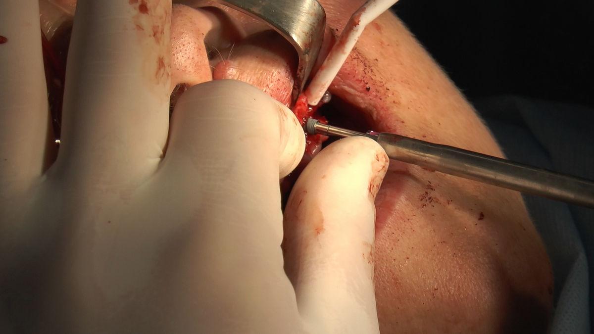 practiculum-implantologii-siv-s3-030