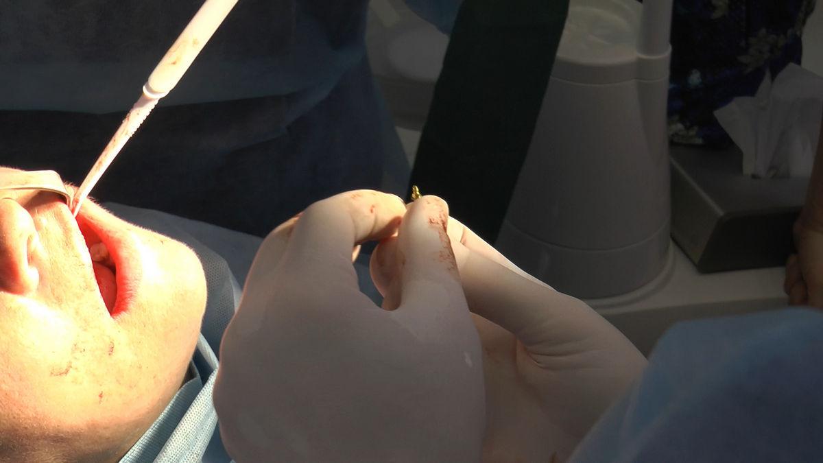practiculum-implantologii-siv-s3-040