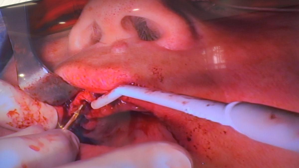 practiculum-implantologii-siv-s3-042