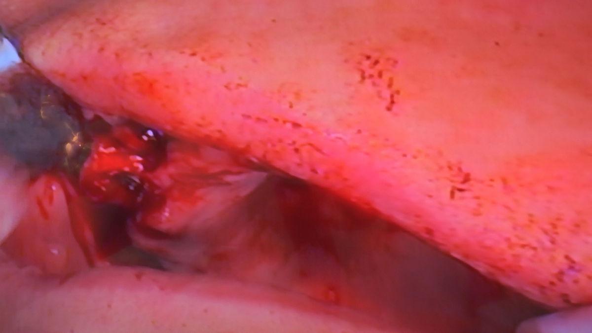 practiculum-implantologii-siv-s3-048