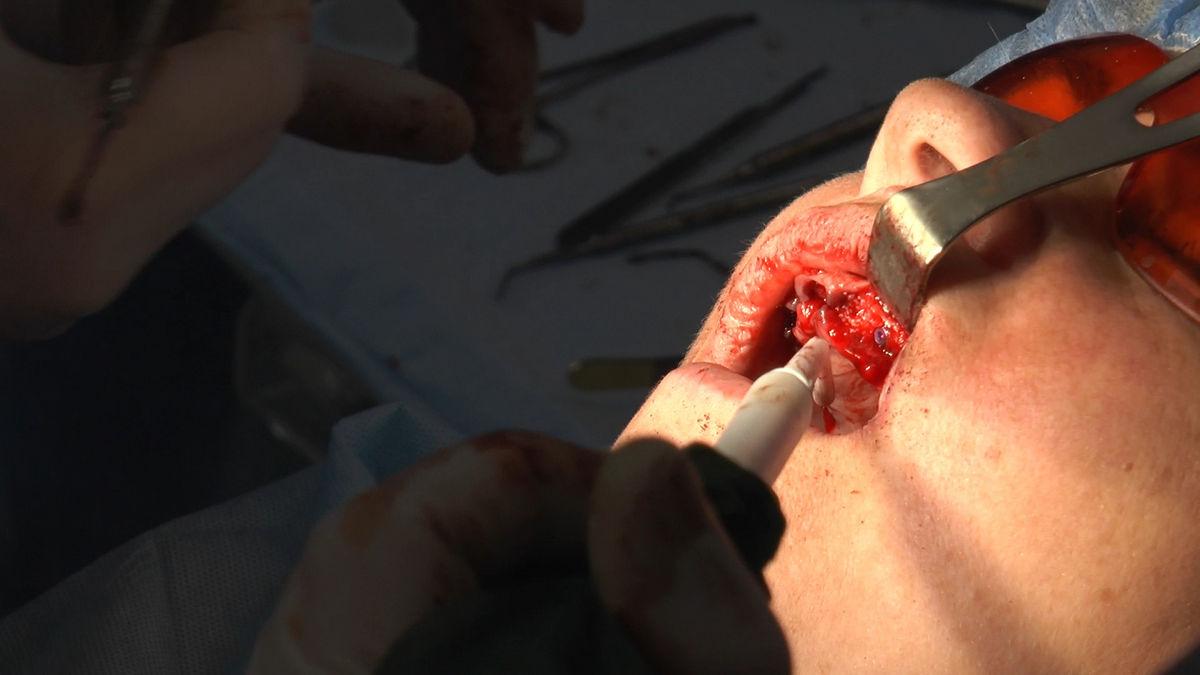 practiculum-implantologii-siv-s3-054
