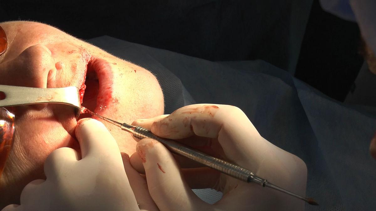 practiculum-implantologii-siv-s3-059