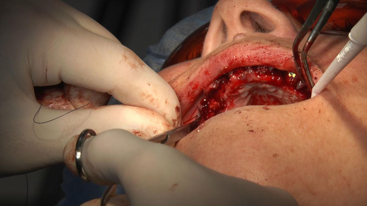 practiculum-implantologii-siv-s3-064