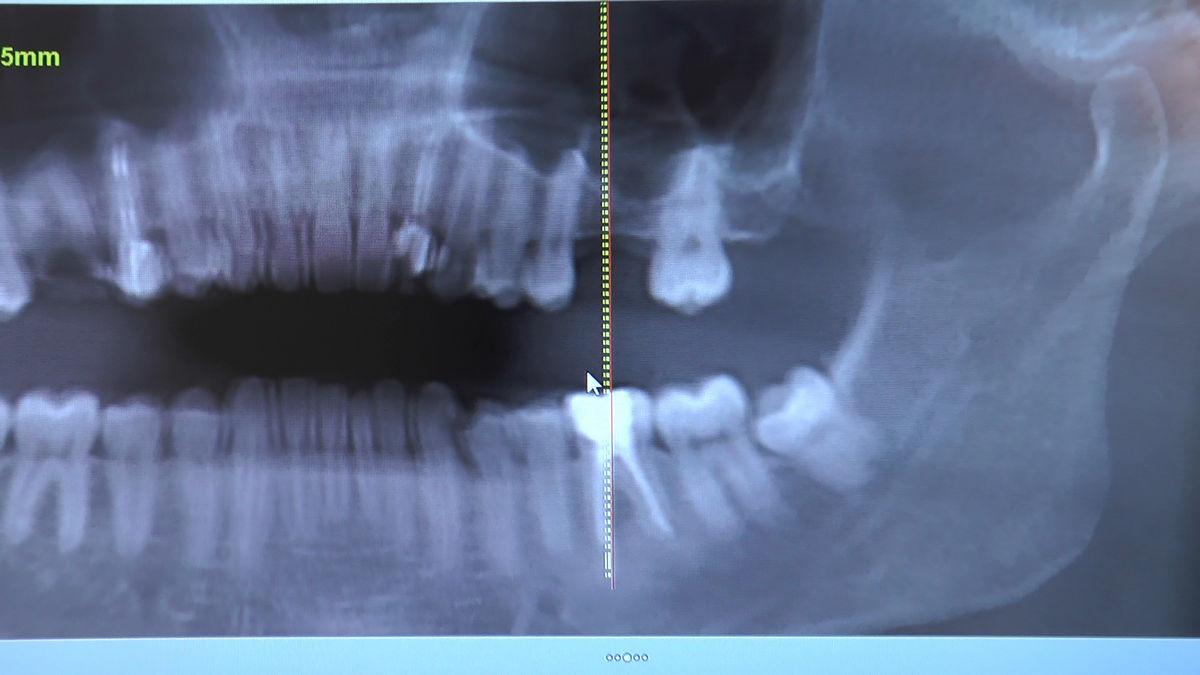 practiculum-implantologii-siv-s3-086