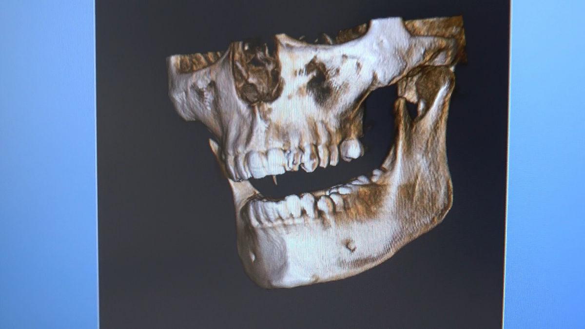 practiculum-implantologii-siv-s3-087