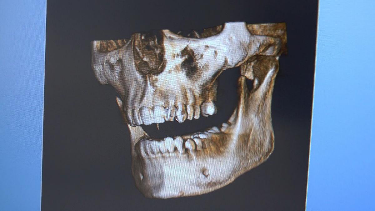 practiculum-implantologii-siv-s3-088