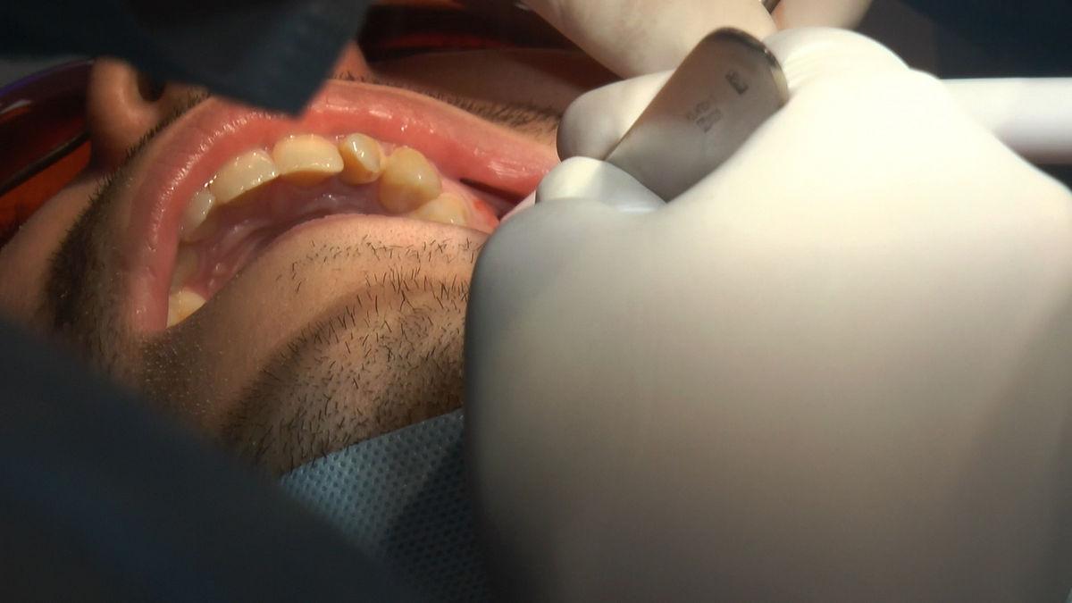 practiculum-implantologii-siv-s3-090