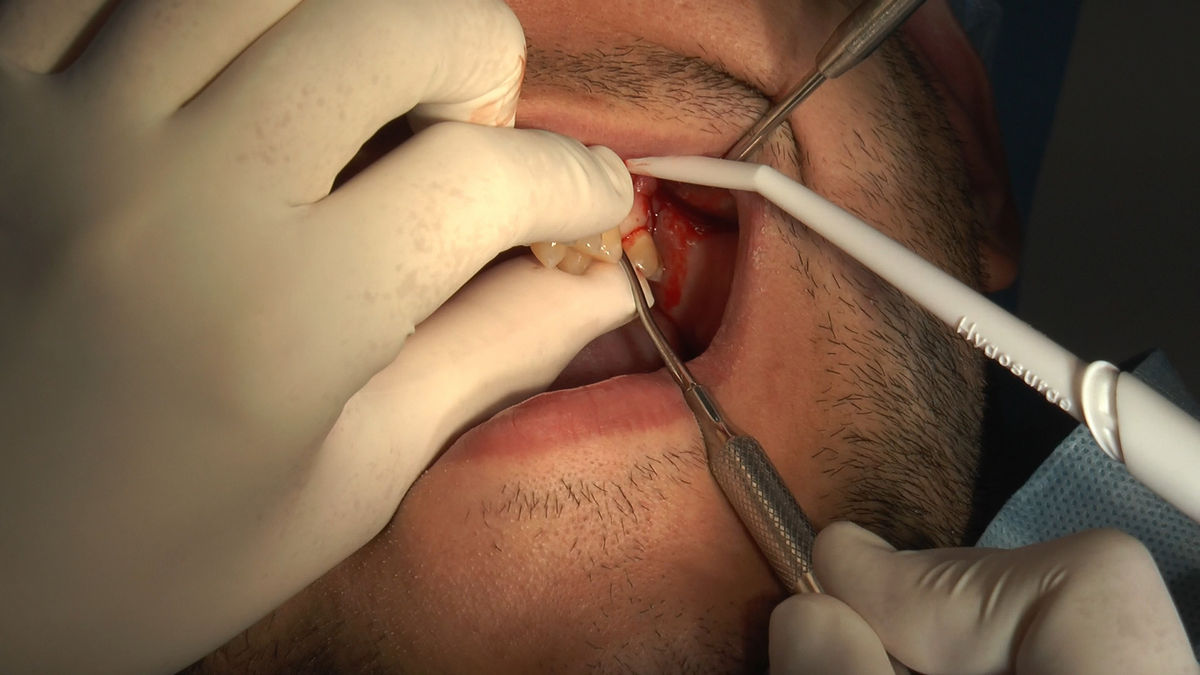 practiculum-implantologii-siv-s3-091