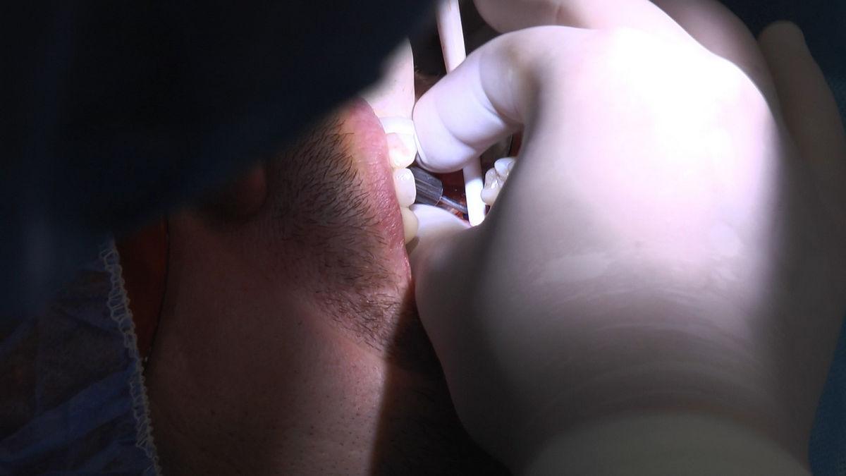 practiculum-implantologii-s-vi-e-7-108