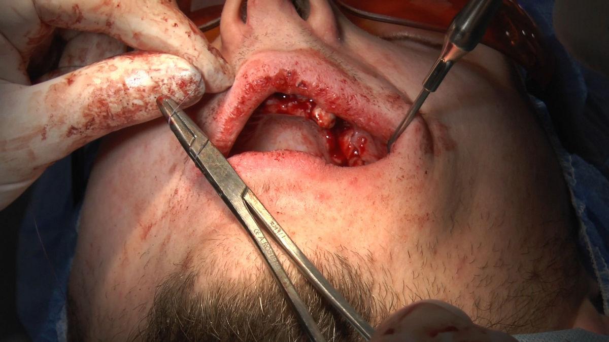 practiculum-implantologii-s-vi-e-7-125