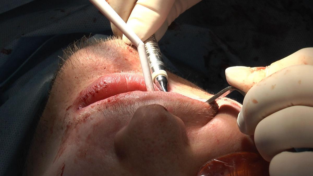 practiculum-implantologii-s-vi-e-7-140