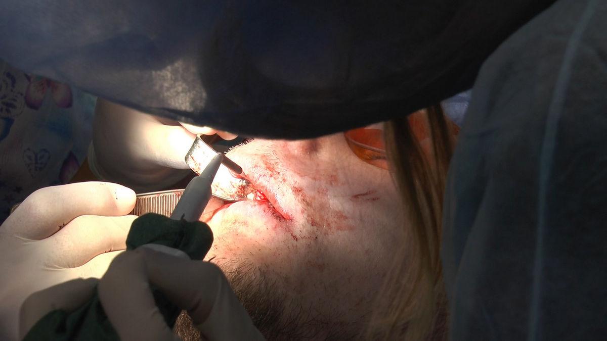 practiculum-implantologii-s-vi-e-7-158