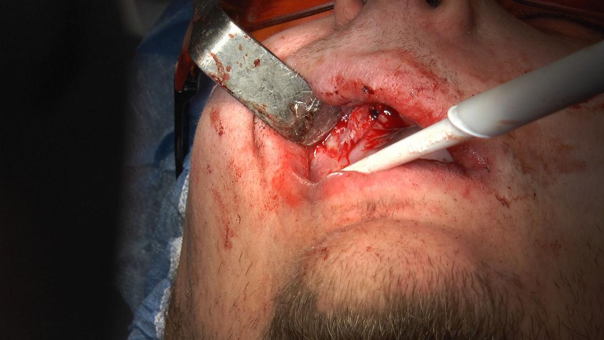 practiculum-implantologii-s-vi-e-7-167
