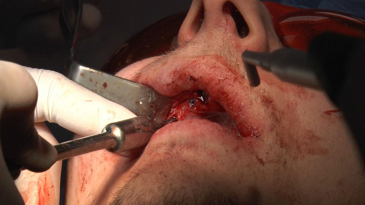 practiculum-implantologii-s-vi-e-7-179