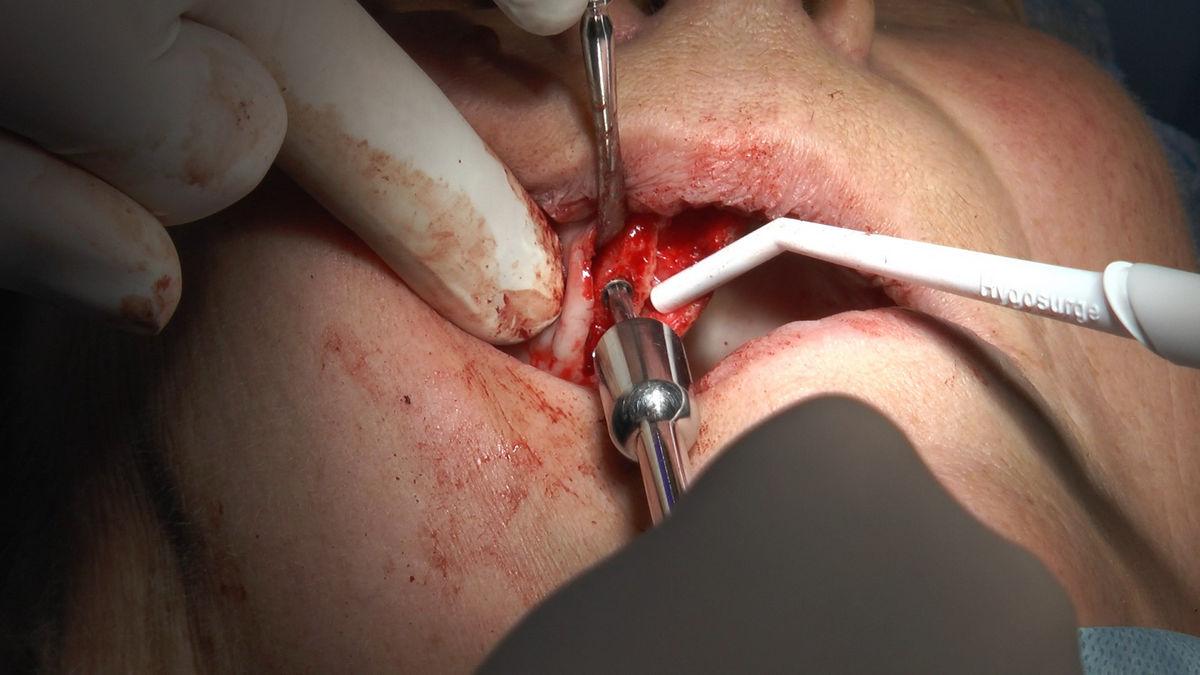 practiculum-implantologii-s-vi-e-7-266