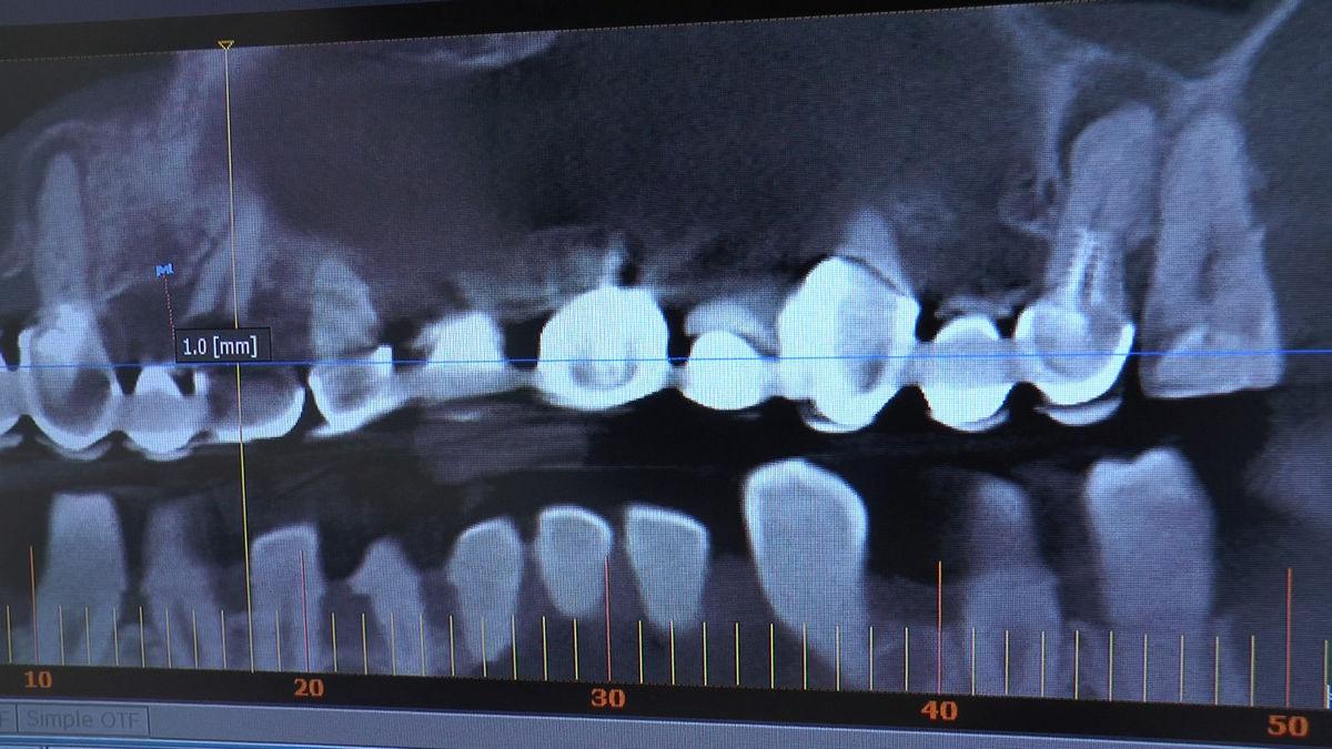 practiculum-implantologii-s-vi-e-7-484