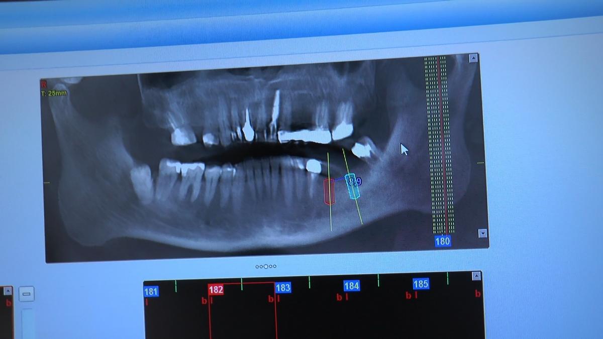 practiculum-implantologii-s-viia-e-3-037