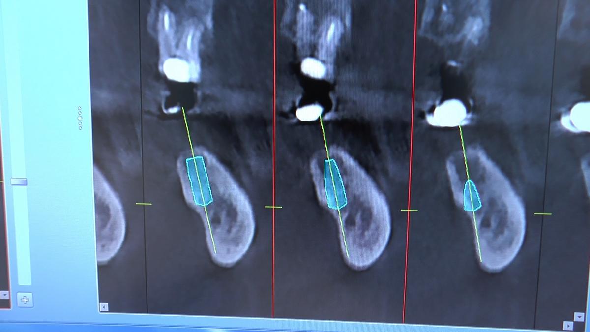 practiculum-implantologii-s-viia-e-3-039