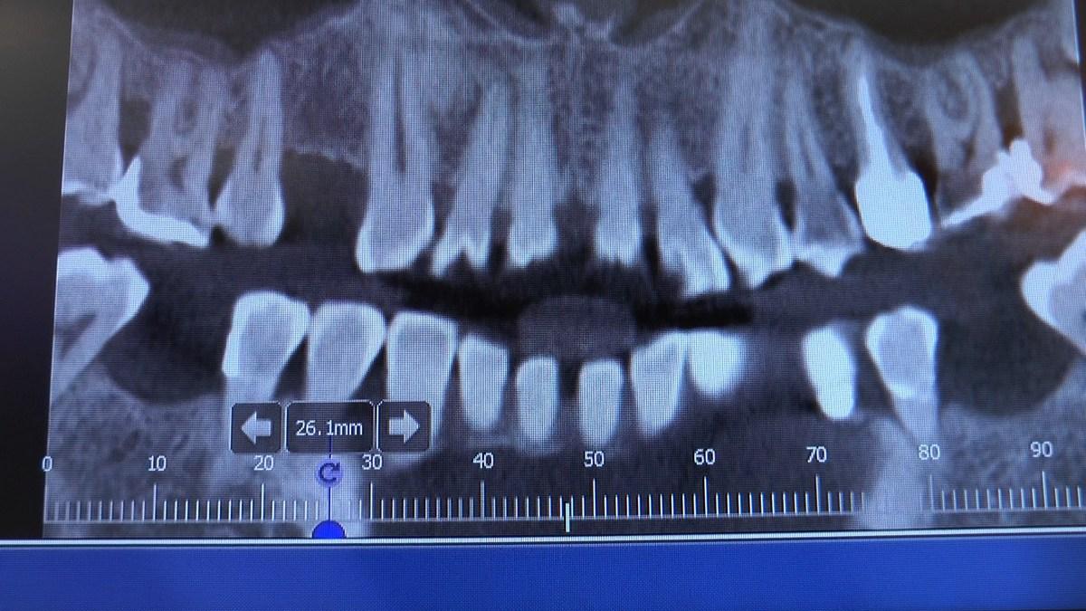 practiculum-implantologii-se-vii-gb-s3-019