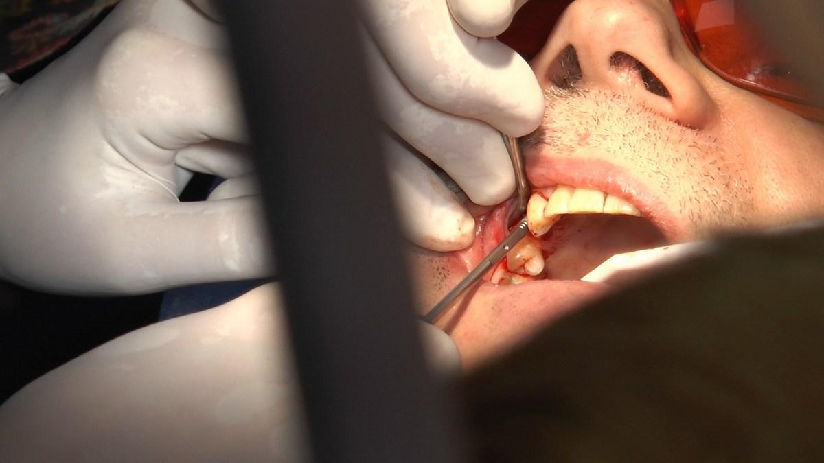 practiculum-implantologii-se-vii-gb-s3-060