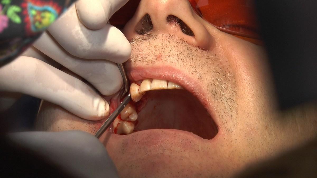 practiculum-implantologii-se-vii-gb-s3-064