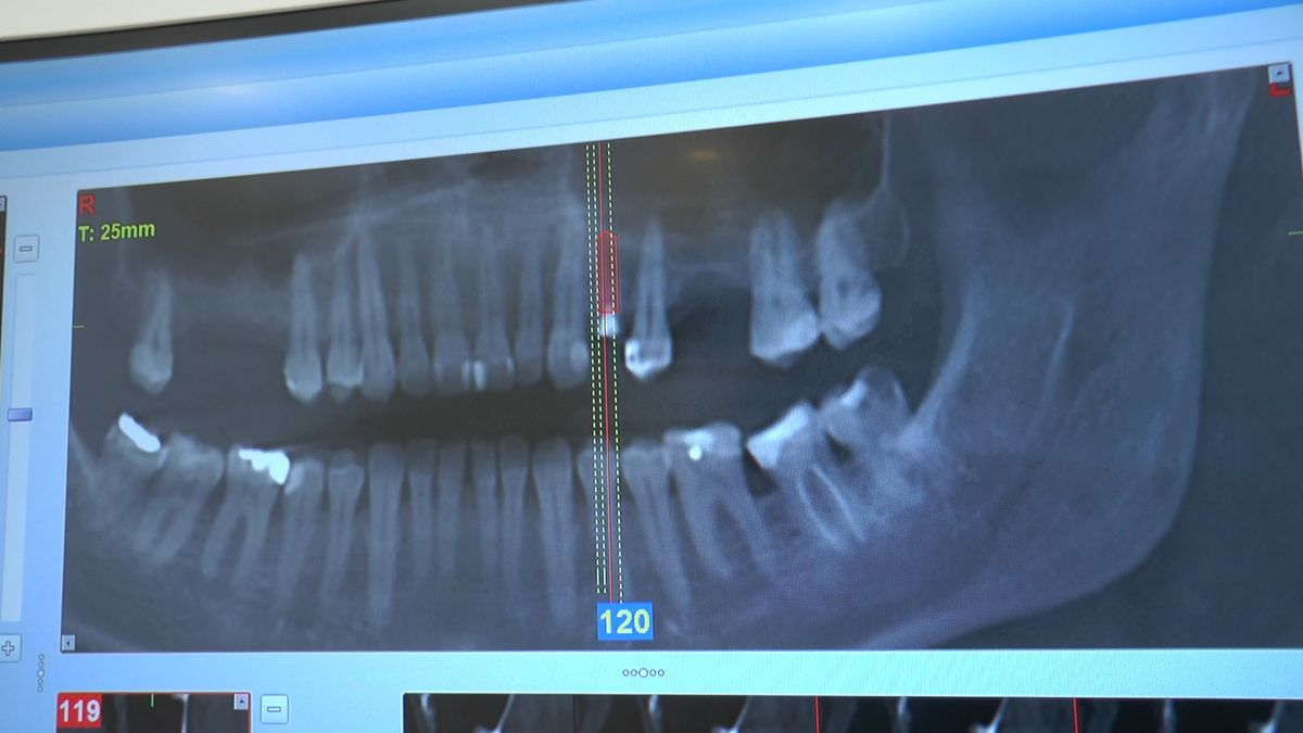 practiculum-implantologii-sviib-s5-004