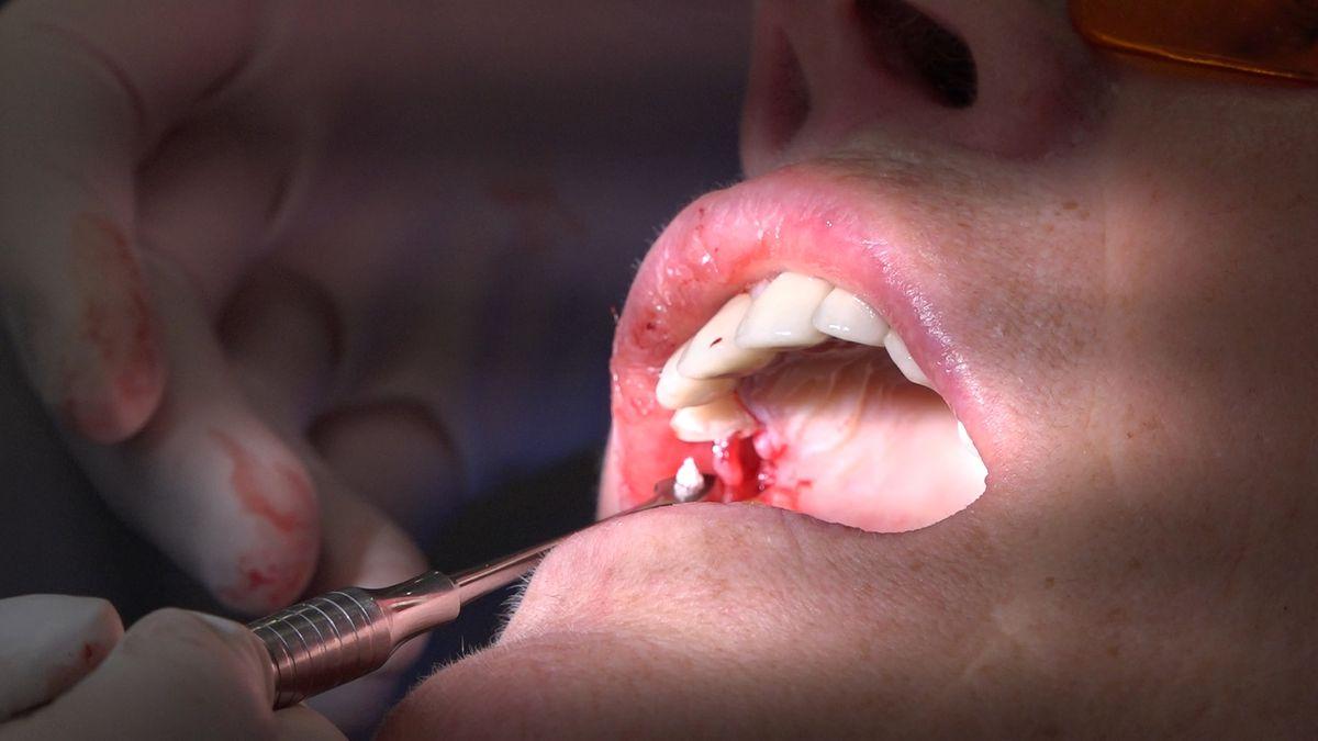 practiculum-implantologii-sviib-s7-d2-065