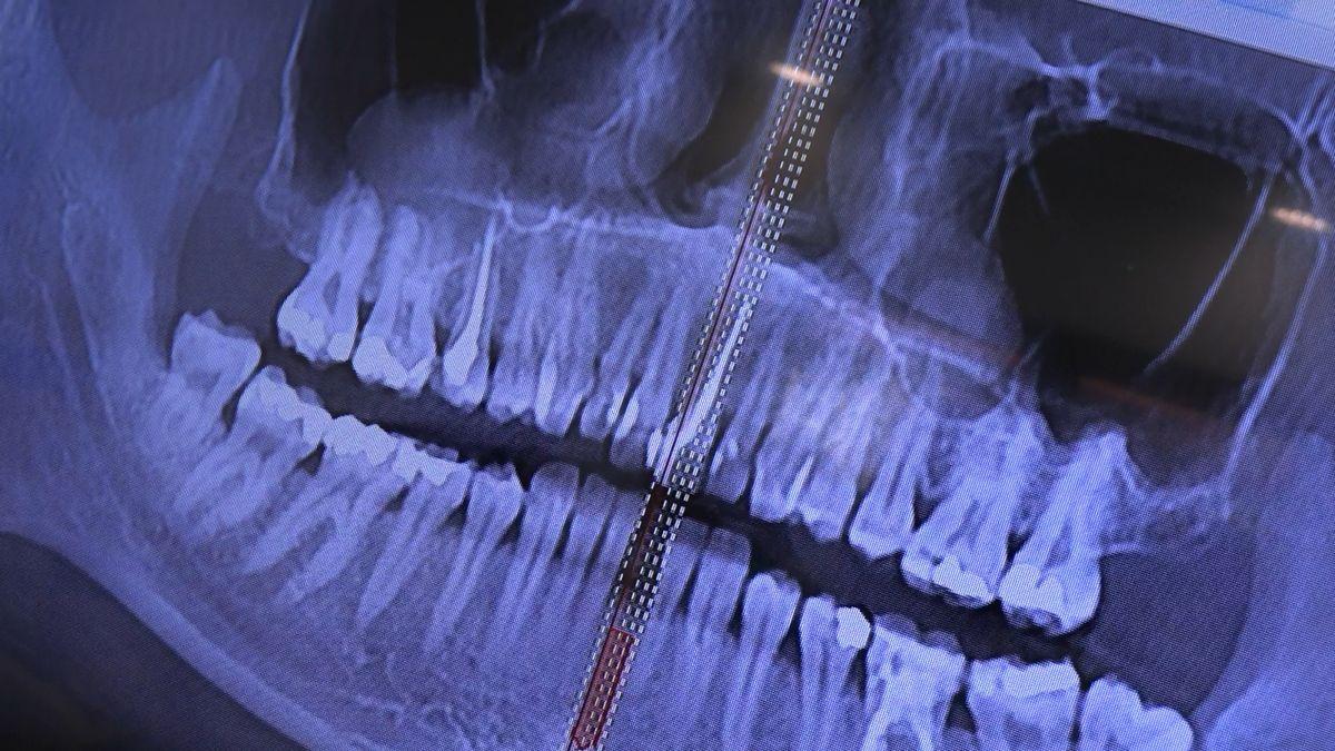 practiculum-implantologii-sviib-s7-d2-080