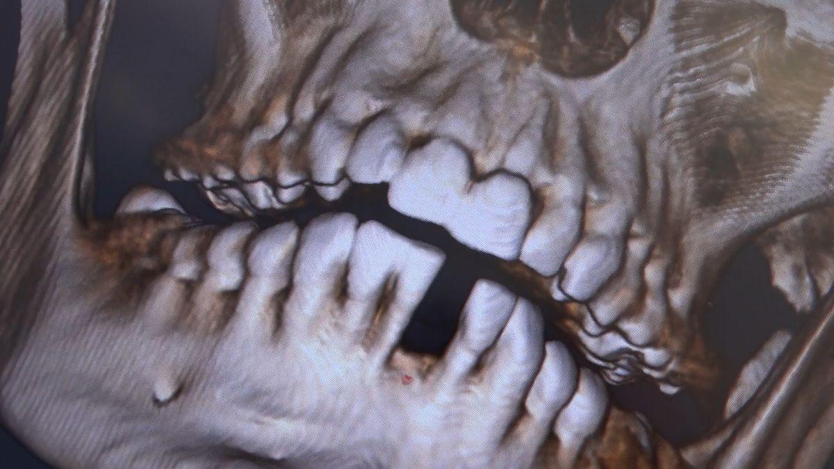 practiculum-implantologii-sviib-s7-d2-081